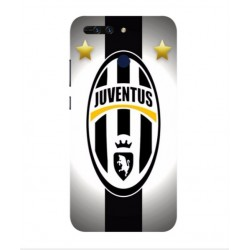 Huawei Honor V9 Juventus Cover