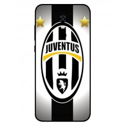 Xiaomi Redmi 5 Plus Juventus Cover