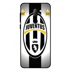 Alcatel 3x Juventus Cover